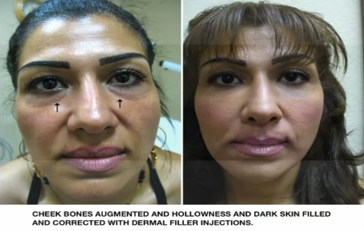 Tear Trough Treatment Injections & Fillers Los Angeles | How